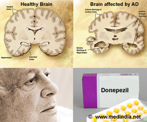 donepezil treatment